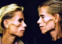 Famous Anorexic Identical Twins Killed in Fire, Fulfilling Prophecy That They Would Die Together