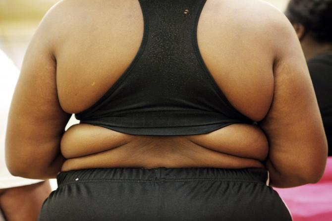 obesity Weight Loss Surgery May Lead to Bone Loss