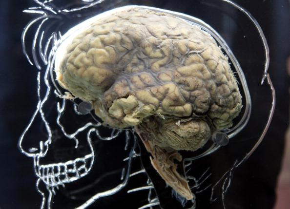 Zika Virus Brain Infection May Also Affect Adults, Study Finds