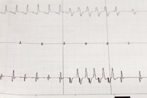 arrhythmia on an electrocardiogram