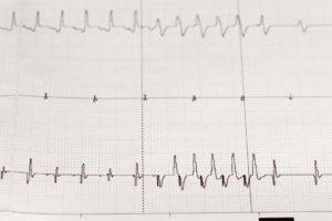 arrhythmia on an electrocardiogram